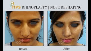 #rhinoplasty #nosejob #nosesurgeon rhinoplasty or nose job is the most central structure on face and any deviation deformity of can lead...