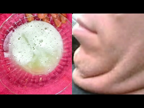 how to get rid of acne on chin and jawline