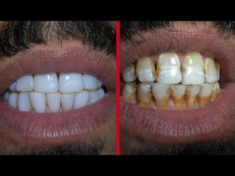 magical teeth whitening remedy , get whiten teeth at home in 2 minutes
