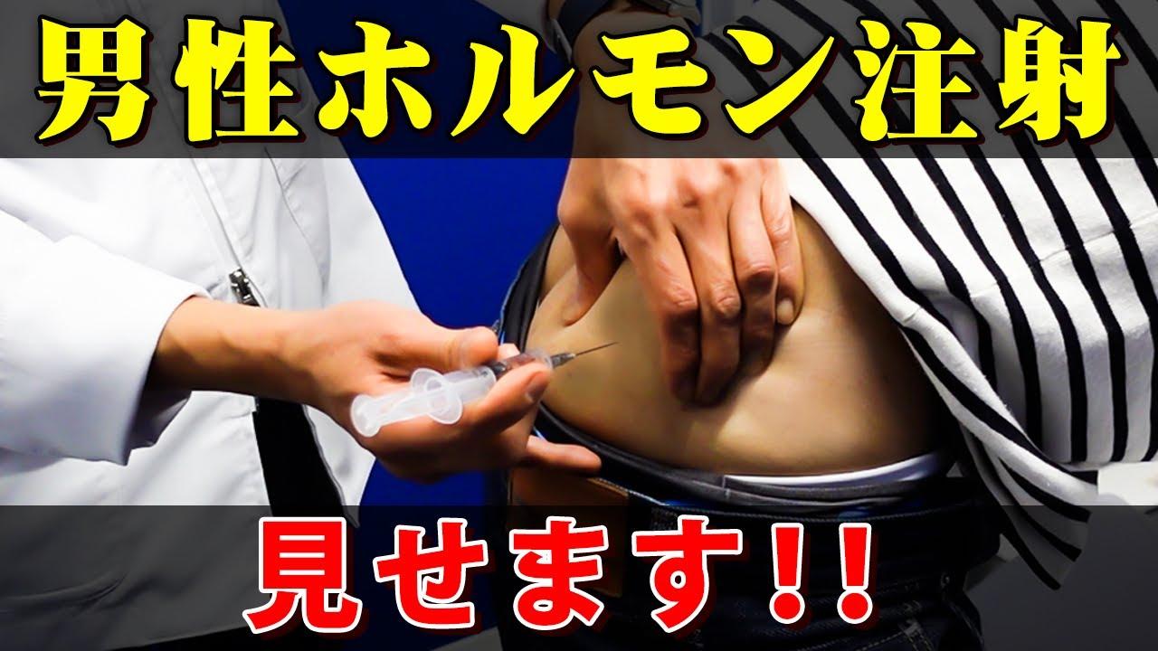 注射 テストステロン