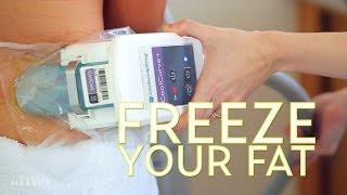 We Tried CoolSculpting in Los Angeles! | #TheSASS with Susan and Sharzad