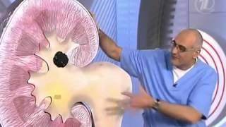 видео Частичная нефрэктомия