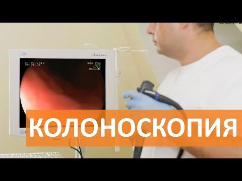 Колоноскопия кишечника. Колоноскопия под наркозом