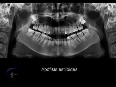 Anatomía en la radiografía panorámica II Anatomic panoramic image II ...