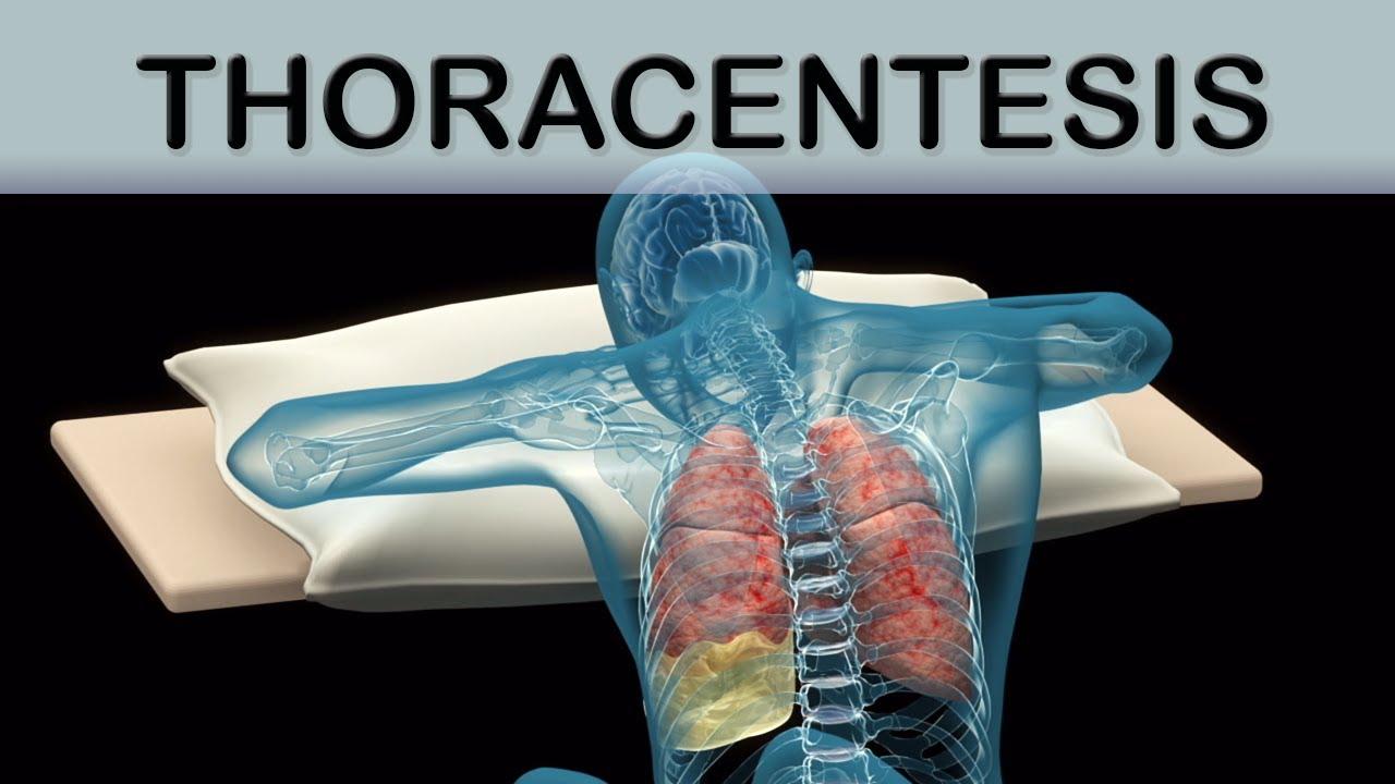 Thoracentesis Medical Animation - YouTube