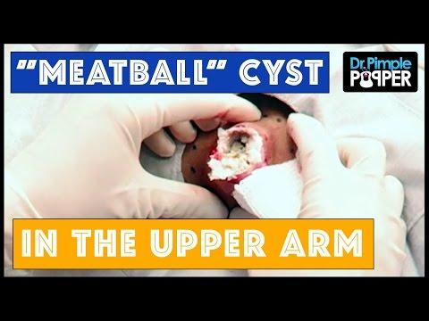 A huge cyst like a DOORKNOB: Hard boiled eggs, anyone?