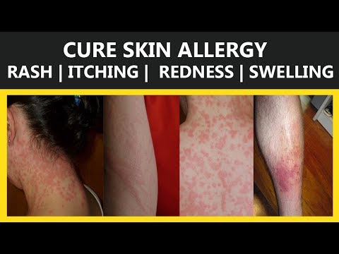 24 Home Remedies To Cure Skin Allergy  | Rash | Itching |  Redness | Swelling