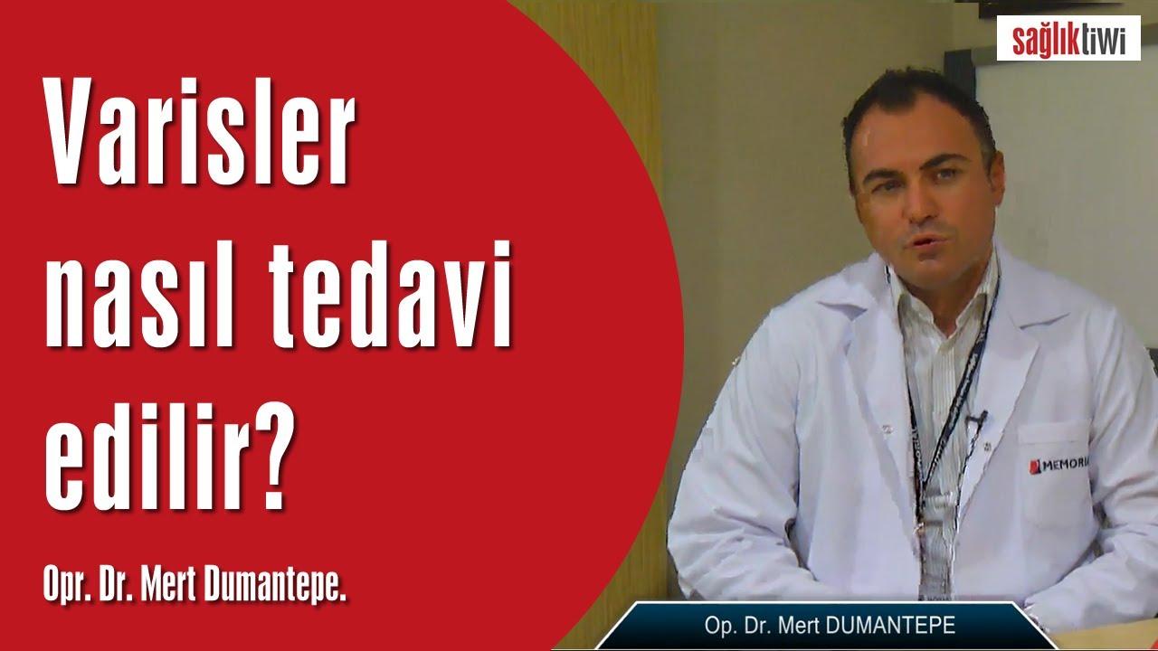 Varisler nasıl Tedavi edilir , kaç çeşit tedavi yöntemi vardır? Op. Dr. Mert Dumantepe