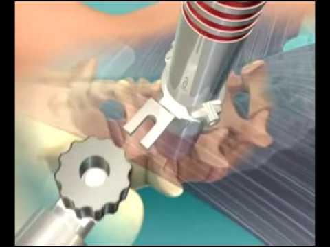 Traitement chirurgical d'un canal lombaire étroit par voie mini-invasive microchirurgical