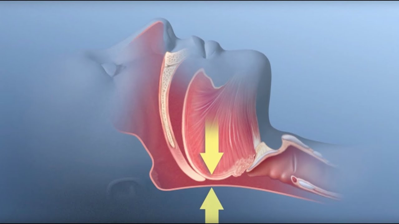 Obstructive Sleep Apnea - Mayo Clinic