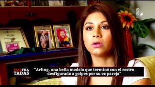 Arling Medina: la bella modelo desfigurada por su expareja