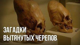 Загадки вытянутых черепов. Игорь Соколов