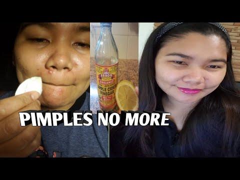 apple-cider-vinegar-for-pimples?