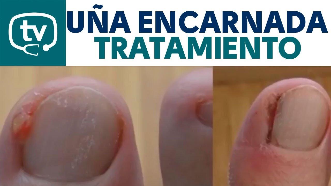 como sacar una uña encarnada en el dedo gordo del pie