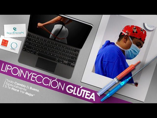Levantamiento de Glúteos con Lipotransferencia o el Brazilian Butt Lift Bogota - Colombia