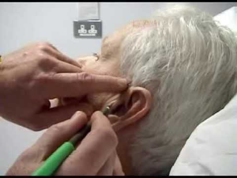Temporal Artery Biopsy Youtube