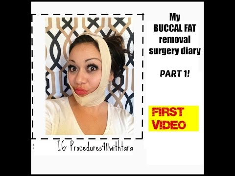 Buccal Fat removal Journey