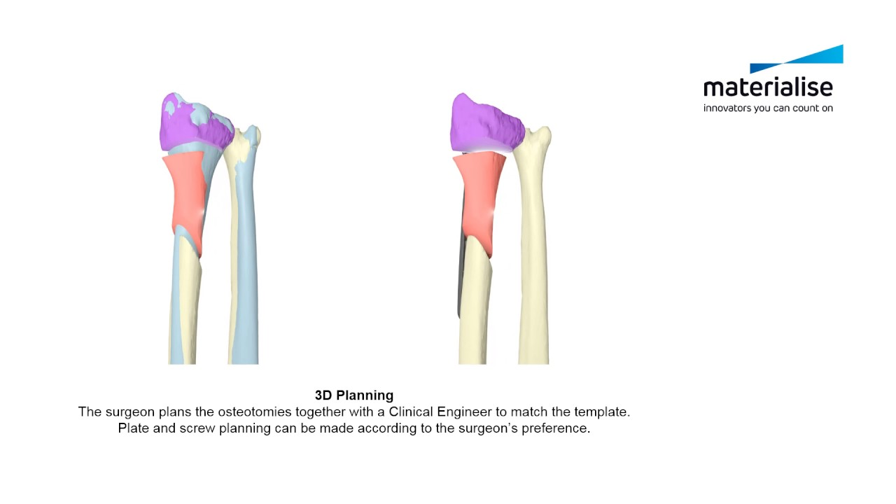 distal radius malunion patient specific guides for radial and