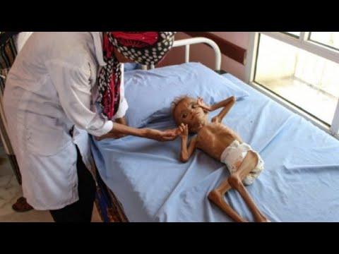 أرقام أممية مروعة تدق ناقوس الخطر في اليمن  - نشر قبل 46 دقيقة