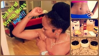 Get Rid of Stretch Marks FAST || 3 POWERFUL Do It Yourself Removal Creams || Step by Step Tutorial
