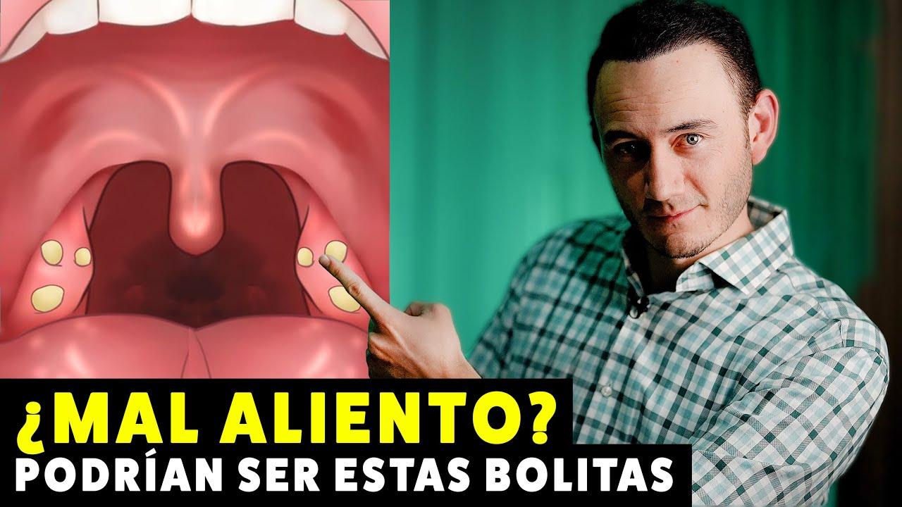 Bolitas Blancas En La Garganta Mal Aliento Causa Y Solución Tonsilolitos Cáseum En Anginas Youtube