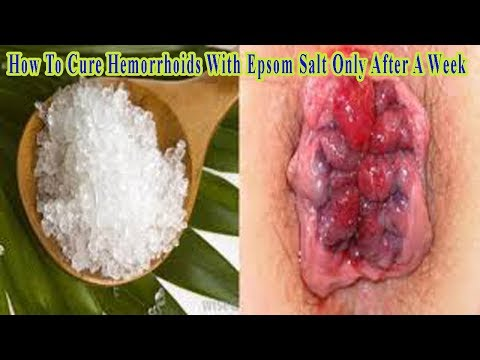 how-to-cure-hemorrhoids-with-epsom-salt-only-after-a-week---activebeat