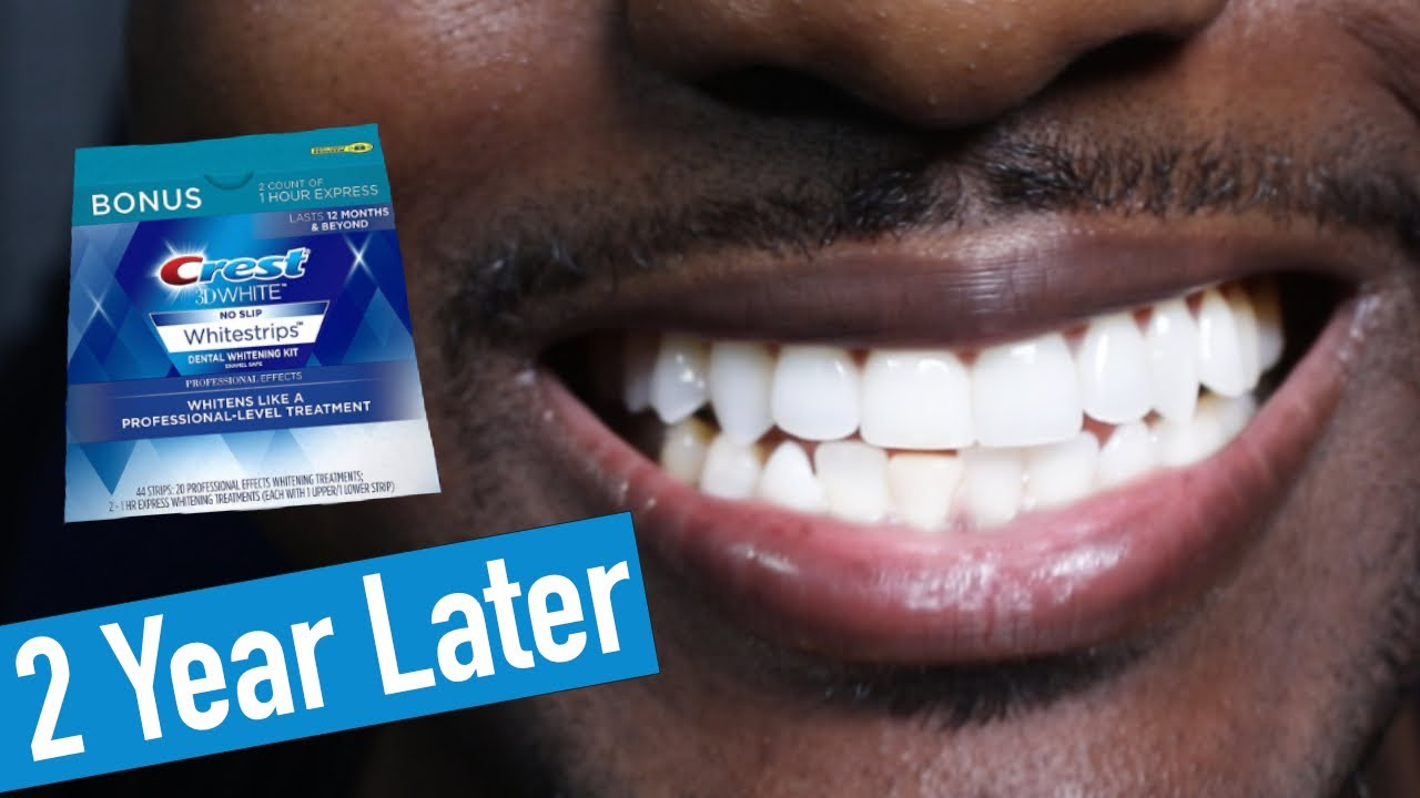 Crest 3d Whitestrips 2 Years Later How To Whiten Teeth Easy