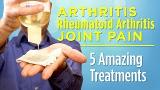 5 Amazing Treatments for Arthritis, Rheumatoid Arthritis, and Joint Pain That Work!
