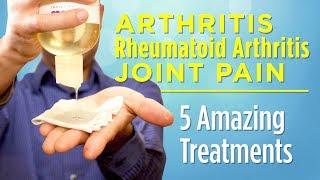 5 Amazing Treatments for Arthritis, Rheumatoid Arthritis, and Joint Pain That Work!