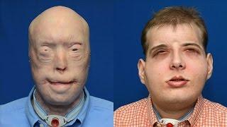 Une greffe totale du visage réalisée aux Etats-Unis