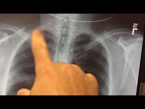 pneumonia on xray