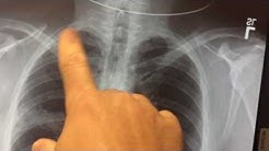 hqdefault - Sciatica X Ray Images Of Pneumonia