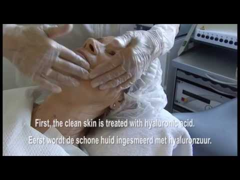 Wrinkle treatment with the Dermapen by Anti Aging Coach, Marjo Horn