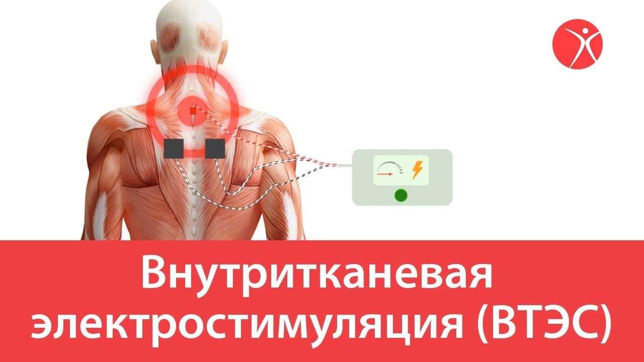 Внутритканевая электростимуляция. Видео схема