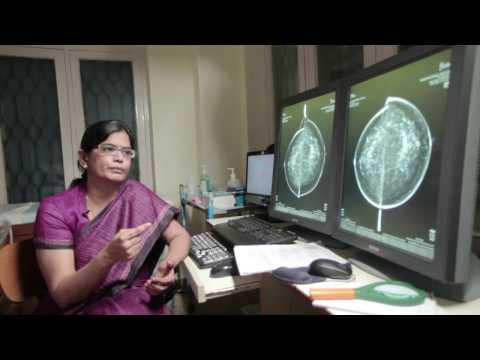 Chennai Breast Centre