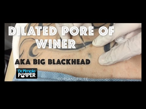 Another Dilated Pore of Winer, aka giant blackhead