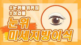 미세지방이식★눈꺼풀위꺼짐이 심하신 분~해결법?!★(SU…
