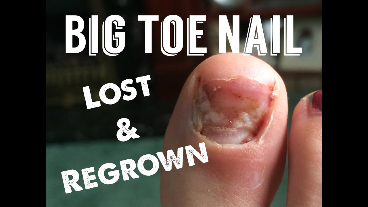 Big Toe Nail Loss and Re Growth Over 8 Months. - YouTube