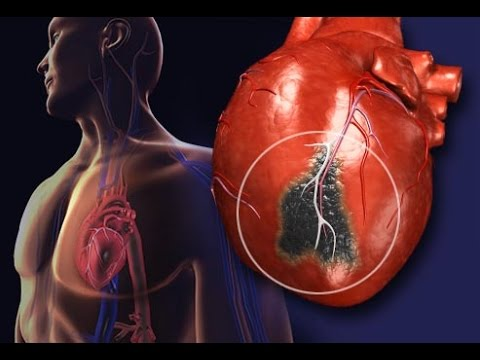 Get A Healthy / Healthier Heart Fast! Subliminals Frequencies Hypnosis Biokinesis Theta Waves