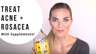 How to Treat Rosacea & Acne With Supplements