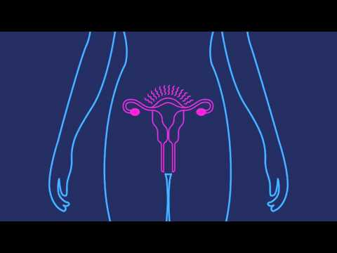 how-effective-is-the-birth-control-shot-|-planned-parenthood-video