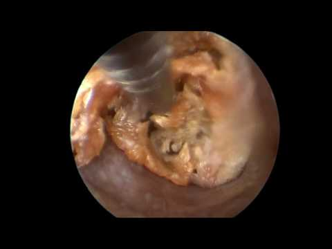 Removing ear wax@Deep ear canal in dog/Dr. Jakaphan  Wannawong, DVM. & Dr. Maturawan Tunhikorn, DVM.