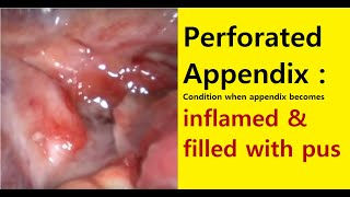 perforated appendix