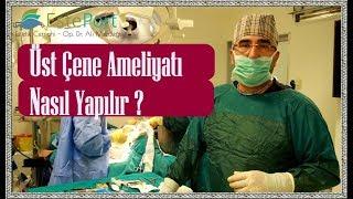 Üst Çene Ameliyatı Nasıl Yapılır ?