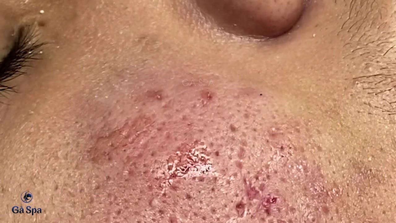 Squeeze Perennial Blackheads