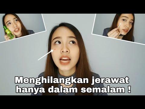 Video Cara Menghilangkan Jerawat Dalam 4 Jam