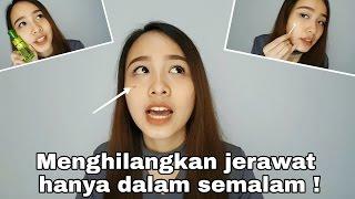 Cara Menghilangkan Jerawat Dalam Satu Malam Ngobrol Soal Jerawat Savira Millenita Youtube