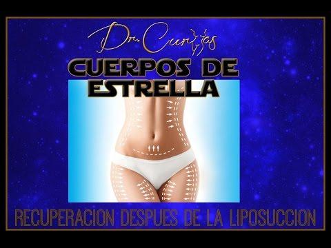 Liposucción-Recuperación de Lipo-Dr.Cortes-Youtube
