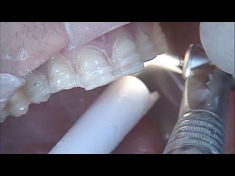Pre Preparation Contouring To Achieve Ideal Archform With IPS Empress® Veneers