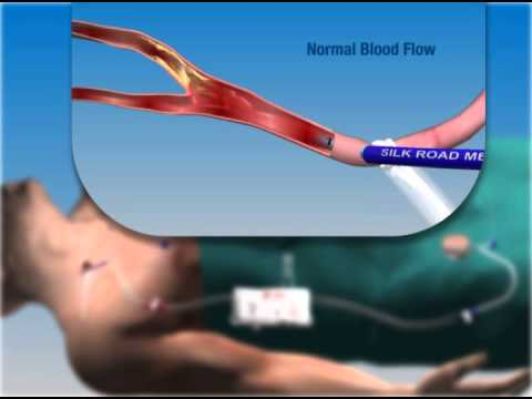Animation of trans-cervical carotid angioplasty with cerebral protection using flow reversal